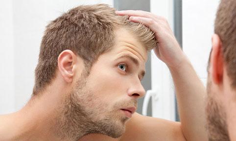 Les hommes et la perte de cheveux : Quelle solution ?